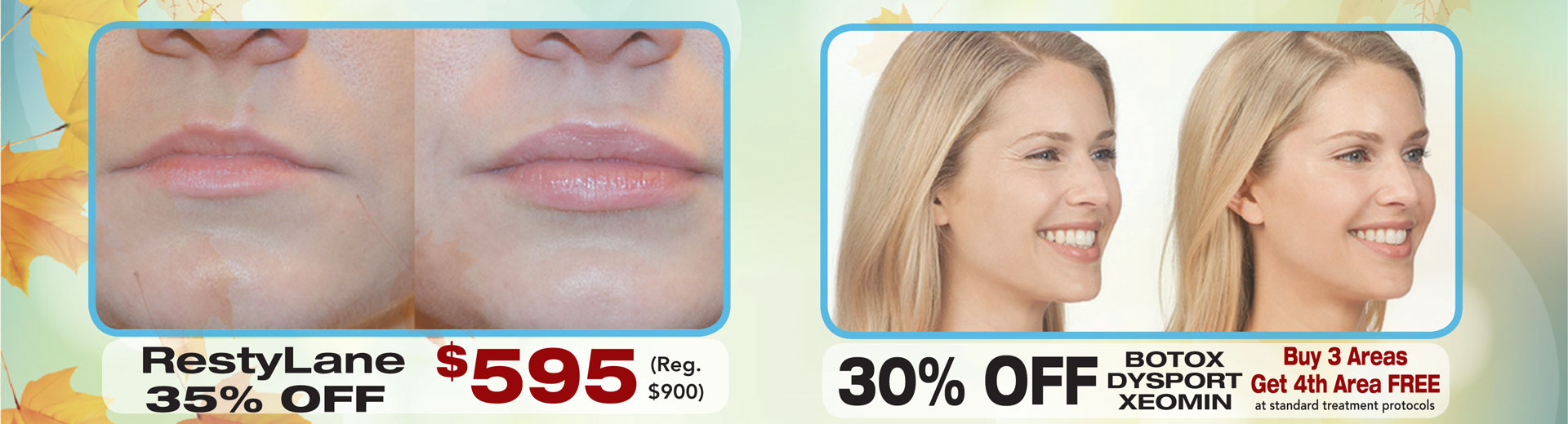 RestyLane 35% Off