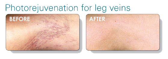 laser-vein-therapy